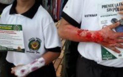 Cero casos de niños quemados con pólvora durante las festividades de Navidad, Año Nuevo y Reyes Magos en Yopal