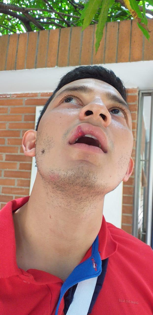 Photo of Enerca denunció presunta agresión a técnicos que labora para Outysourcing Oriente LTDA
