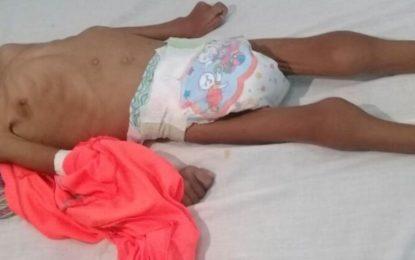 Entidades de salud desmiente caso de muerte de niños en Resguardo Caño Mochuelo